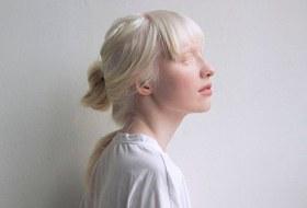 Женщины сальбинизмом— окарьере, комплексах икрасоте