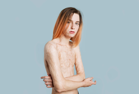 Света Уголек— модель сожогами 45% тела