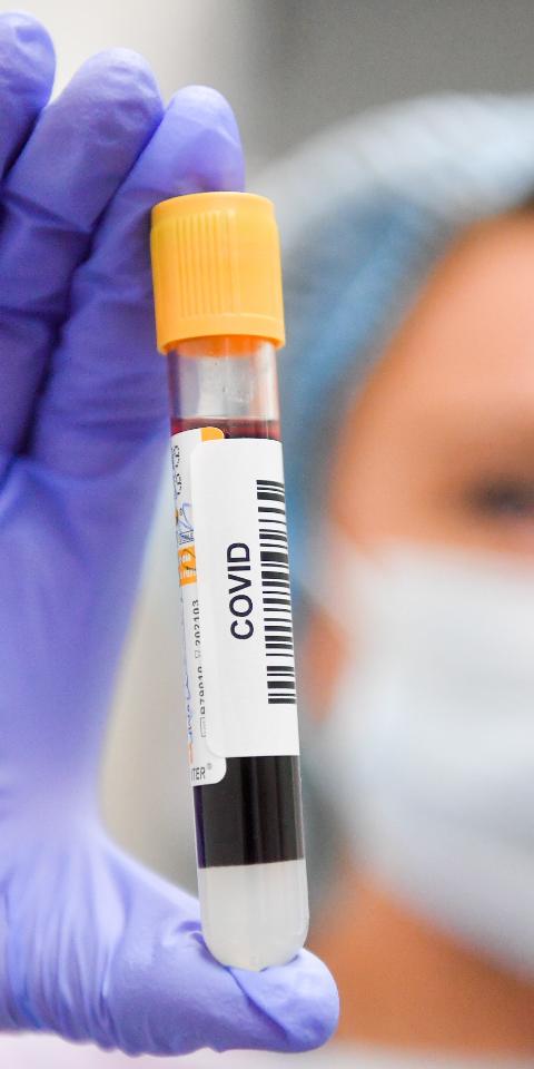 Перенесших коронавирус будут приглашать намедосмотры, чтобы выявить последствия болезни