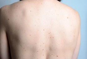 Шеллак, солярий иродинки: Разбираем мифы ораке кожи